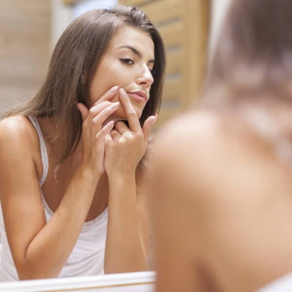 The Best Skin Care Products for Sensitive Skin With Acne